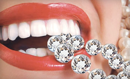 $59 for an In-Home Icing Teeth Whitening from Bling Dental ($199 Value)