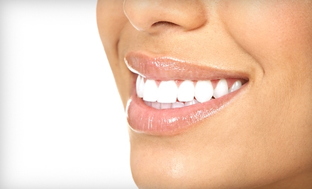 $60 for One SpaWhite Express Teeth-Whitening Session at Amadeus Spa in Canton ($119 Value)