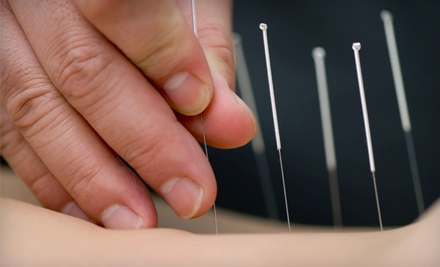One, Two, or Three Acupuncture Treatments at Coastal Acupuncture in Mount Pleasant (Up to 57% Off)