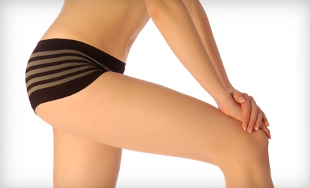 Six or Nine Zerona Laser Treatments at Cosmedic Lazer MedSpa in Avon (Half Off)