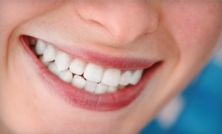 $98 for a Teeth-Whitening Session at Cara Bella Studio in Greenwood Village ($249 Value)