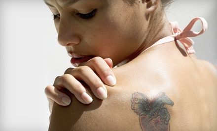$64 for a Laser Tattoo-Removal Session on One Square Inch at Mill Creek Skin & Laser Center in Mill Creek ($129 Value)