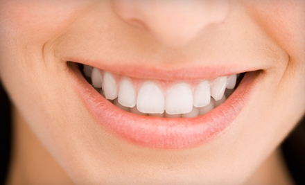 $29 for a Fast-Acting Teeth-Whitening Combo Kit from SmileFusion Teeth Whitening ($66.98 Value)
