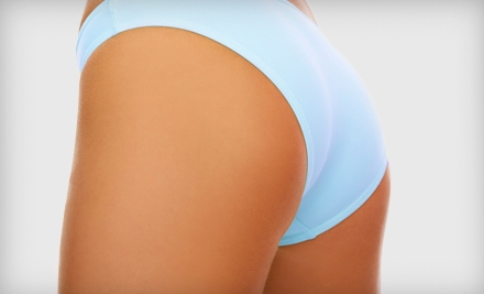 $199 for Five Synergie Cellulite-Reduction Treatments at John Nelson Salon and Spa in Brentwood ($475 Value)