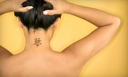 $99 for Laser Tattoo Removal on Up to 16 Square Inches at Laser Tattoo Removal of Carmel in Carmel ($275 Value)
