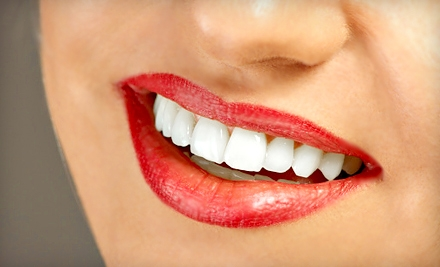 $99 for Four Teeth-Whitening Sessions at SmileLabs of Omaha ($396 Value)