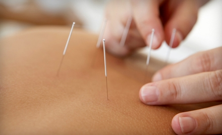 $29 for Two-Hour Acupuncture Session at Oswego Progressive Medicine in Lake Oswego ($213 Value)